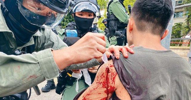 受傷警員大量流血。